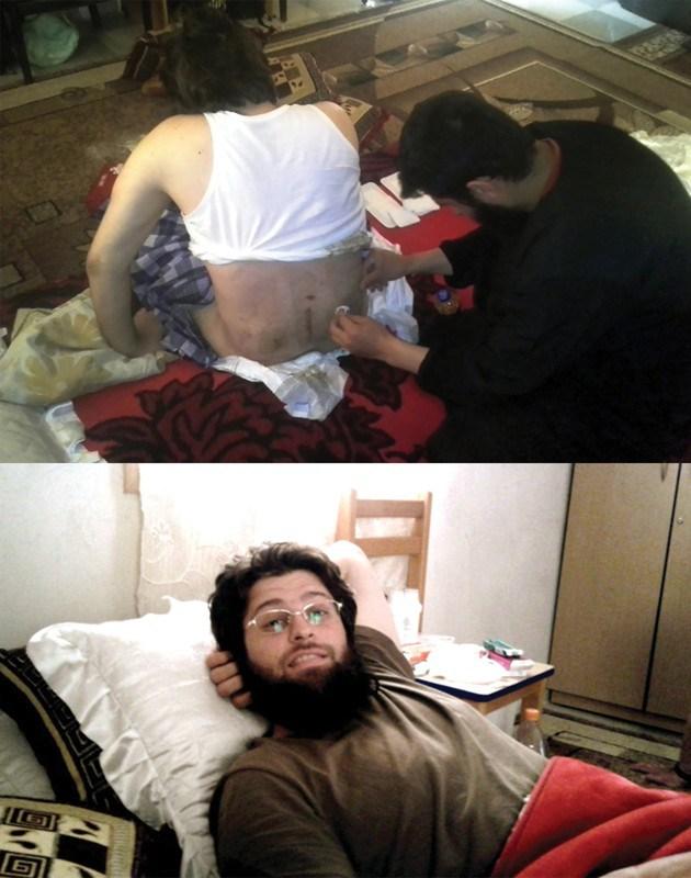 To 2014 τραυματίας στο Χαλέπι της Συρίας